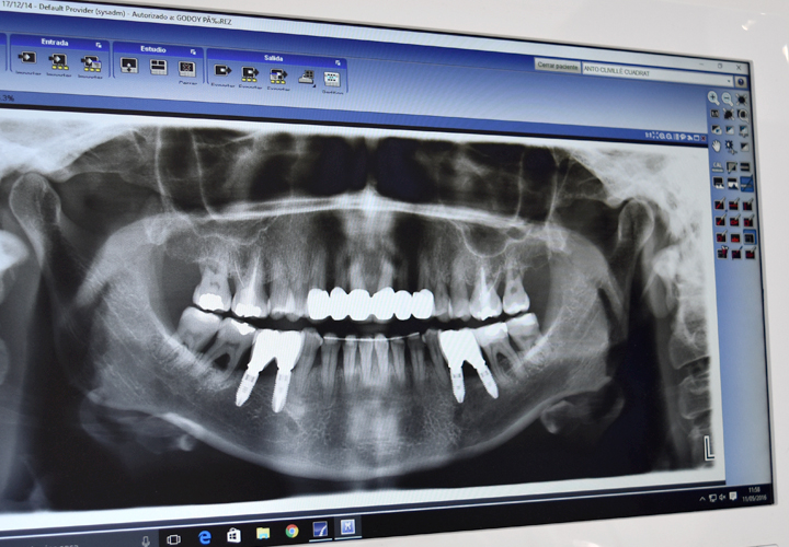 Implants i cirurgia